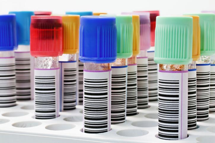 Podstawowe badania profilaktyczne: krew, cukier, cholesterol